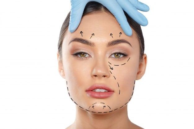 cirurgia palpebras